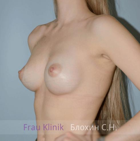 Увеличение груди 47