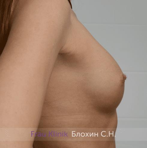Увеличение имплантами 12