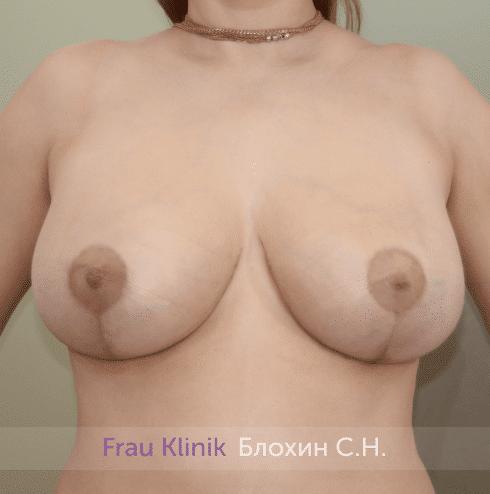 Уменьшение груди 78