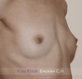 Увеличение груди 210