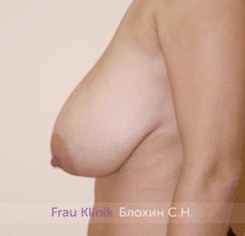 Уменьшение груди 73