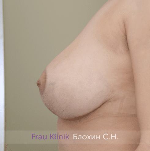 Уменьшение груди 74
