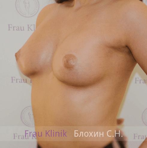 Увеличение груди 57