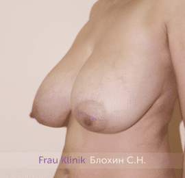 Уменьшение груди 75