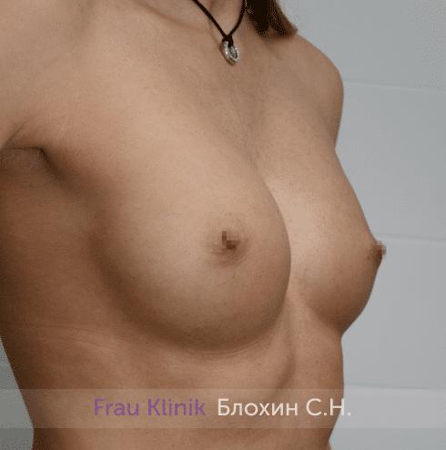 Увеличение имплантами 10