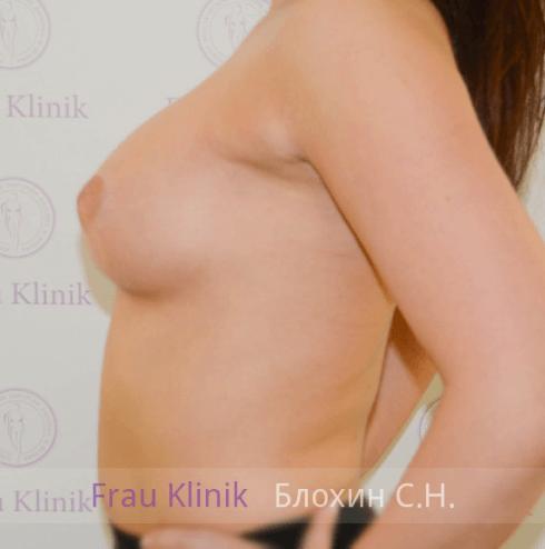 Увеличение груди 55