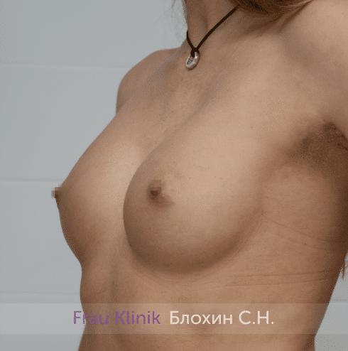 Увеличение имплантами 6
