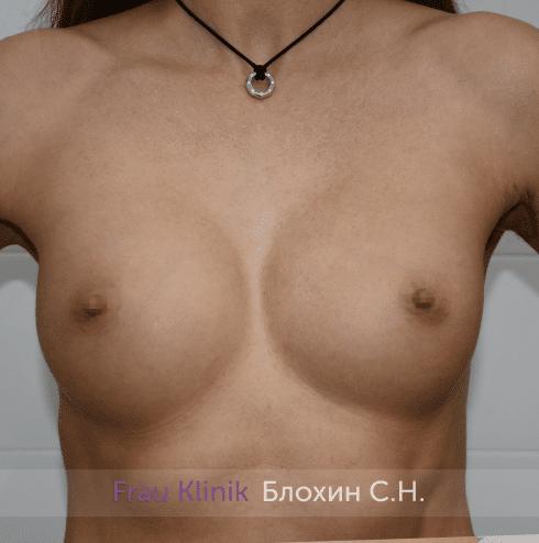 Увеличение имплантами 8