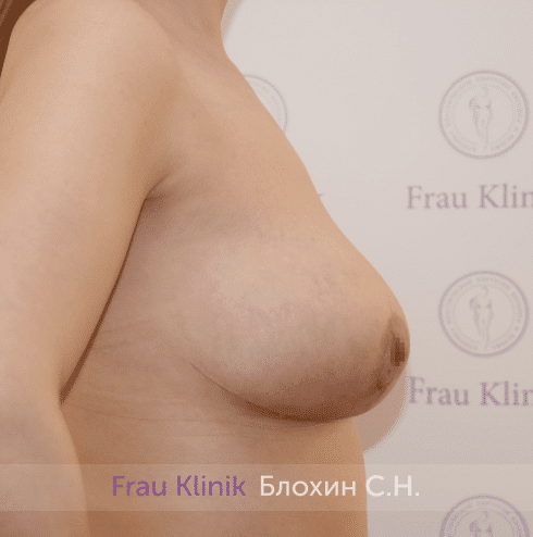 Уменьшение груди 90