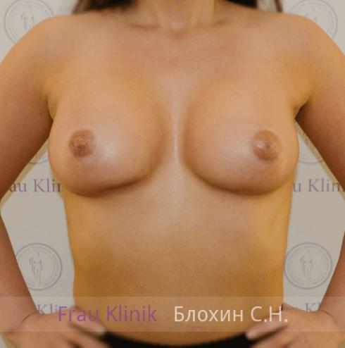 Увеличение груди 59