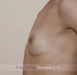 Увеличение груди 204
