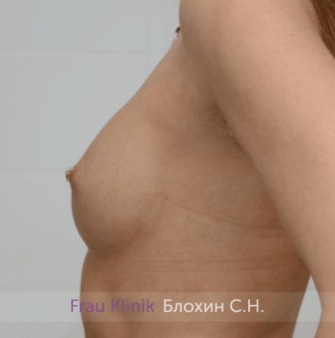 Увеличение имплантами 4