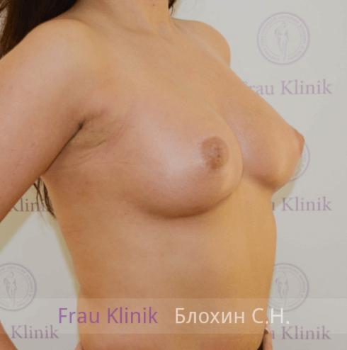Увеличение груди 61