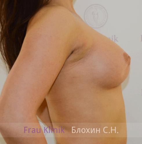 Увеличение груди 63