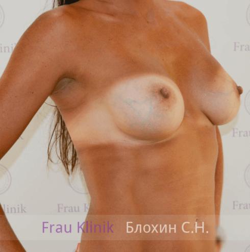 Увеличение груди 71