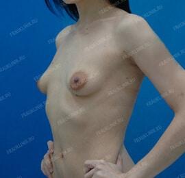 Пластика тубулярной груди 7