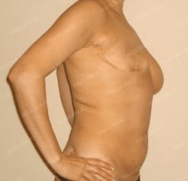 Реконструкция груди 17