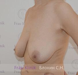 Уменьшение груди 7