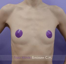 Увеличение имплантами 53