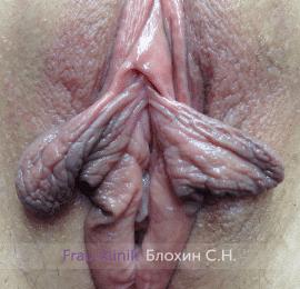 Лабиопластика 8