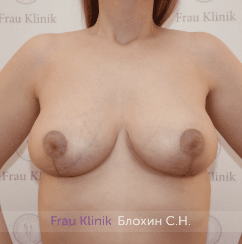 Уменьшение груди 36