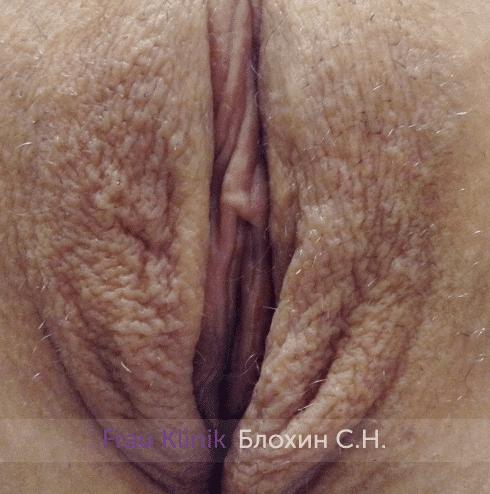 Лабиопластика 9