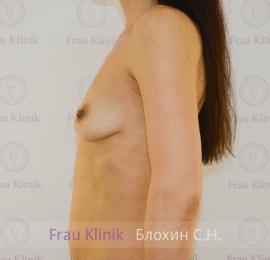 Увеличение груди 64