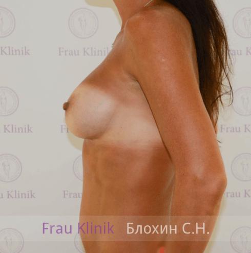 Увеличение груди 65