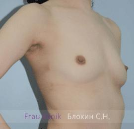 Увеличение груди 80