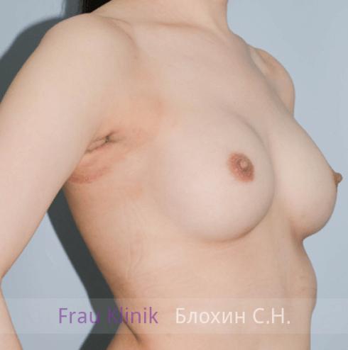 Увеличение груди 81
