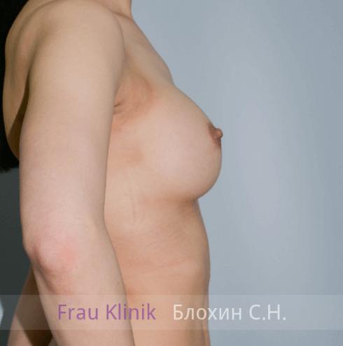 Увеличение груди 83