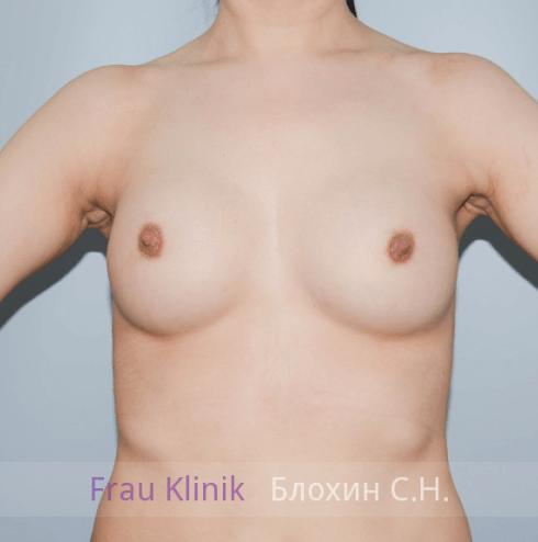 Увеличение груди 79