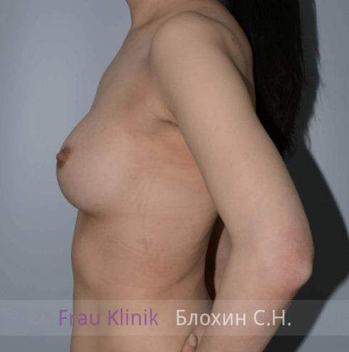 Увеличение груди 75