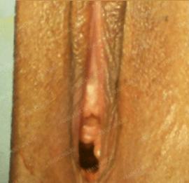 Лабиопластика 16