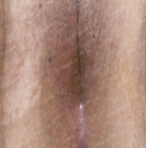 Лабиопластика 17