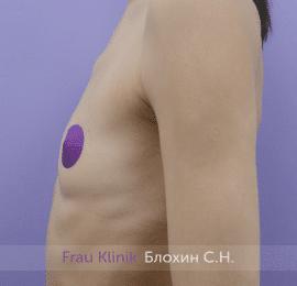 Увеличение имплантами 51