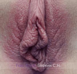 Лабиопластика 10