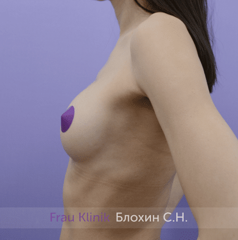 Увеличение имплантами 50