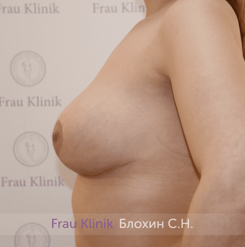 Уменьшение груди 34