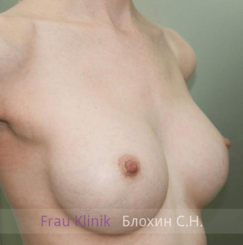 Увеличение груди 91
