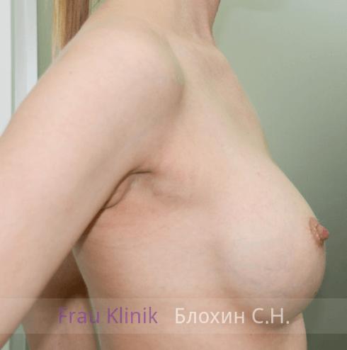Увеличение груди 93