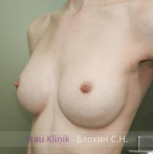 Увеличение груди 87
