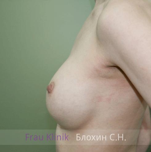 Увеличение груди 85
