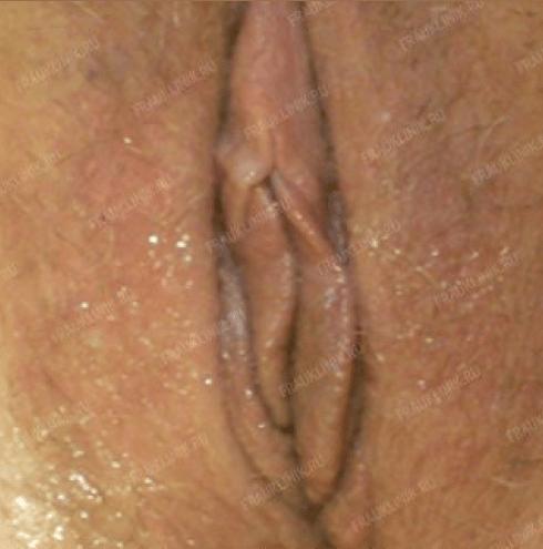 Лабиопластика 19