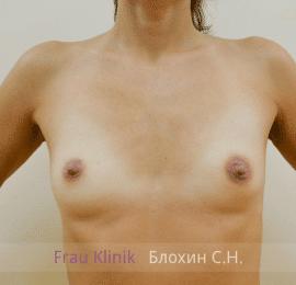 Увеличение груди 96
