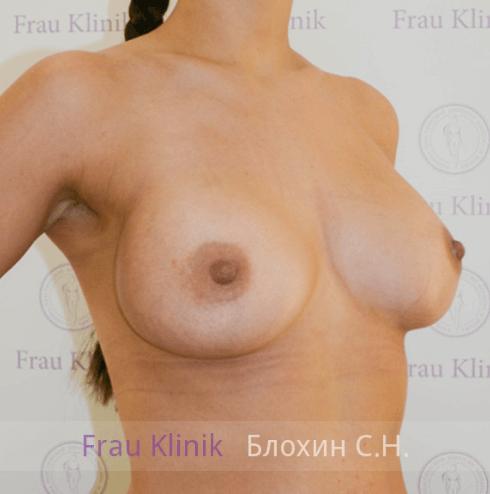 Увеличение груди 109