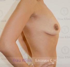 Увеличение груди 110