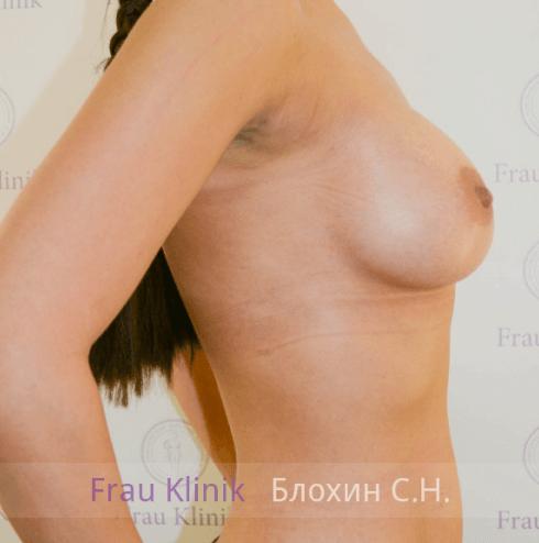 Увеличение груди 111