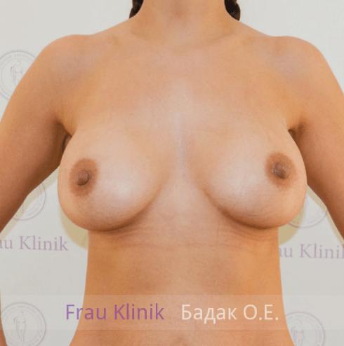Увеличение груди 107
