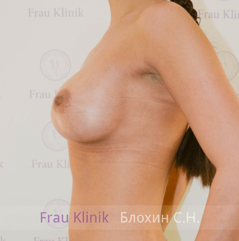 Увеличение груди 103